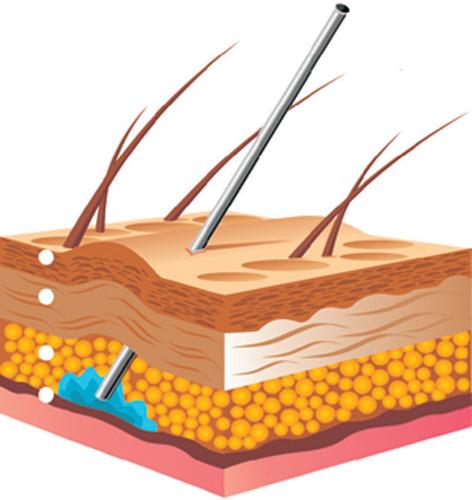 mesotherapy scheme
