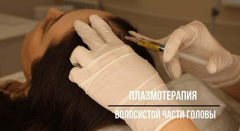 Плазмотерапия волосистой части головы